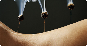 moxibustion on services page